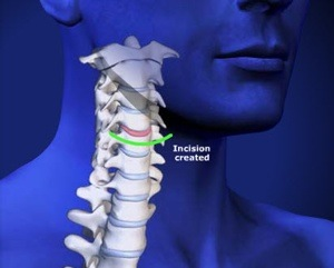 Cervical Artificial Disc (Arthroplasty) Step 1 Incision