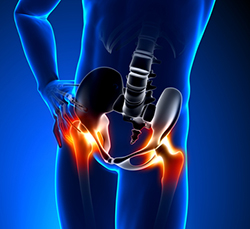 Total Hip Replacement Revision Surgery