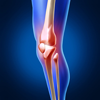 ConforMIS Custom Partial Knee Replacement
