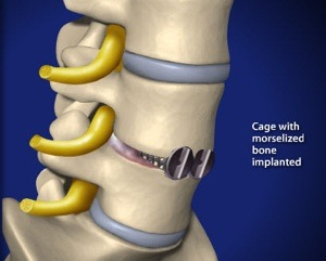 Anterior Lumbar Interbody Fusion (ALIF) Step 3 Bone Graft Insertion