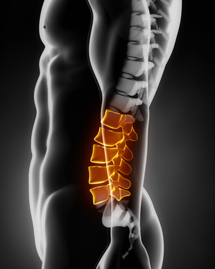 Lumbarization of the Spine