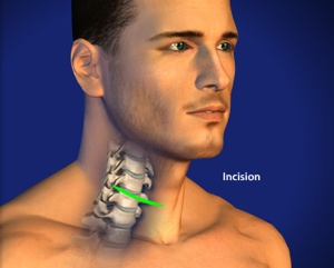 Anterior Cervical Discectomy Step 1 Incision