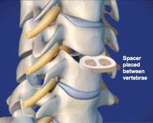 Anterior Cervical Discectomy and Fusion (Intervertebral