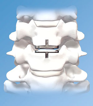 PRODISC-C Artificial Cervical Disc