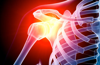 Shoulder Arthroscopy and Debridement